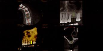 MRI写真